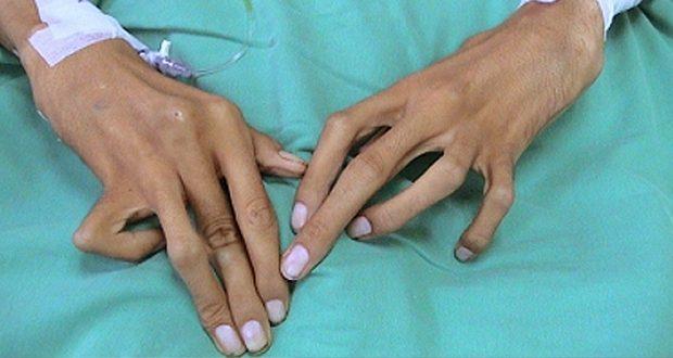 A Napoli un centro per la cura della sindrome di Marfan